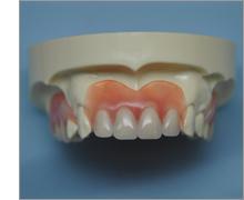 歯と顎に優しい入れ歯