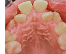 上顎前突 ~出っ歯の治療例~